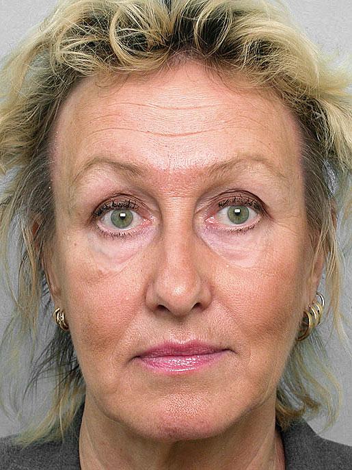 Laserpeeling och ögonlockplastik på kvinna