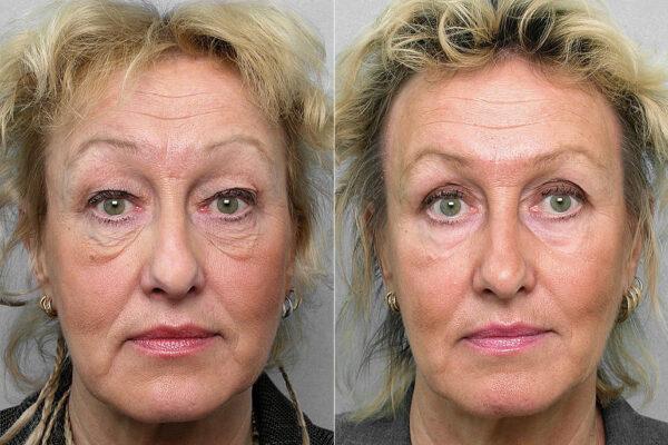 Före och efter-bild på kvinna som gjort ögonlocksplastik, laserpeeling under + runt ögat, samt Obagis hudvårdsprogram