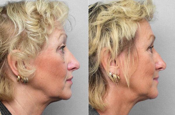 Före och efter-bild på kvinna i profil, som gjort ögonlocksplastik, laserpeeling runt ögat, + Obagis hudvårdsprogram