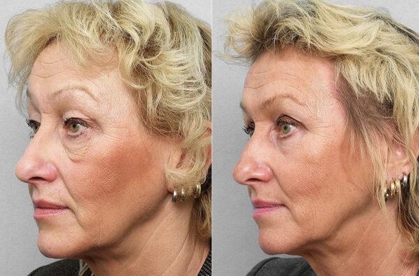 Före och efter-bild på kvinna i halvprofil, som gjort ögonlocksplastik, laserpeeling runt ögat, + Obagis hudvårdsprogram