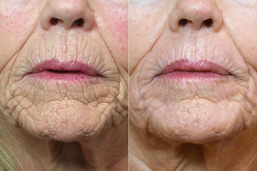 Detaljbild på kvinna före och efter genomförd laserbehandling med Ultrapuls laserpeeling runt munnen.