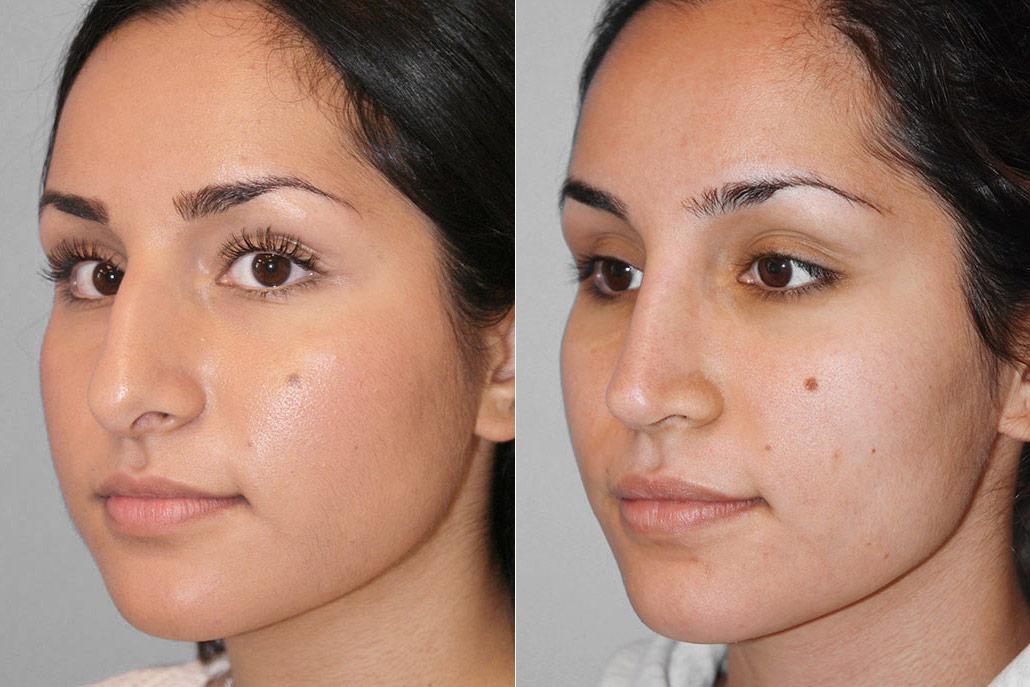 Före- och efterbild på kvinna i halvprofil, för en genomförd näsplastik i form av total näsplastik.