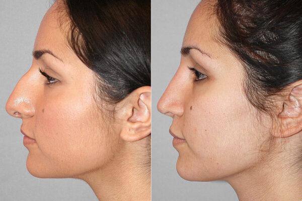 Före- och efterbild på kvinna i profil, för en genomförd näsplastik i form av total näsplastik.