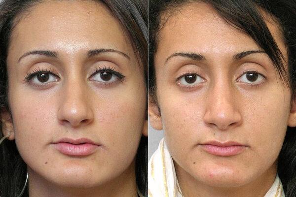 Före- och efterbild på kvinna som genomfört total näsplastik.