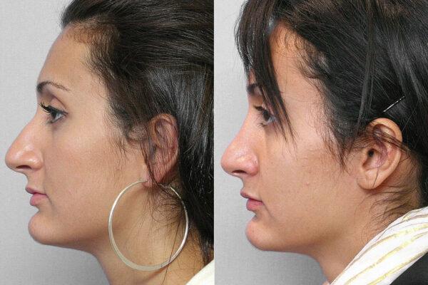 Före- och efterbild på kvinna i vänsterställd profil, från genomförd total näsplastik.