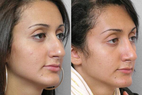 Före- och efterbild på kvinna i högerställd halvprofil, från genomförd total näsplastik.