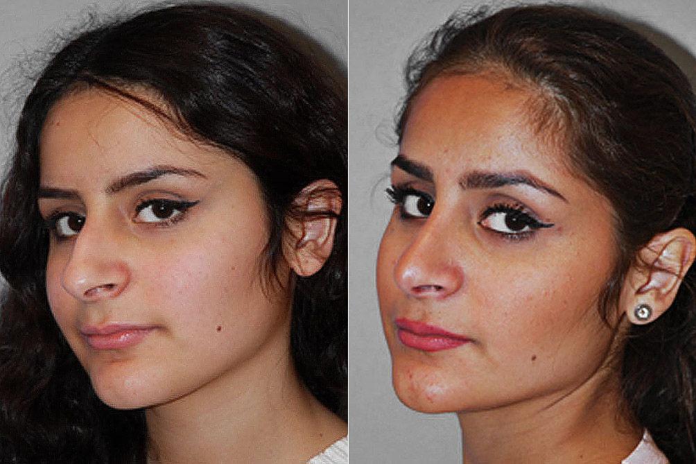 Före- och efterbild på kvinna i vänsterställd halvprofil, som genomgått näsplastik i form av total näsplastik.