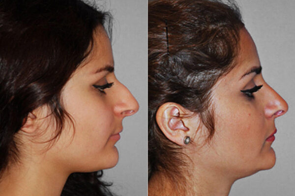 Före- och efterbild på kvinna i höger profil, som genomgått näsplastik i form av total näsplastik.