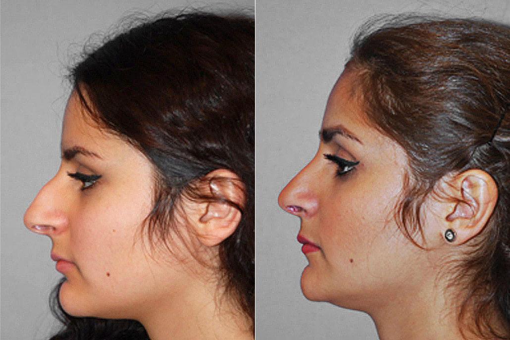 Före- och efterbild på kvinna i vänsterställd profil, som genomgått näsplastik i form av total näsplastik.