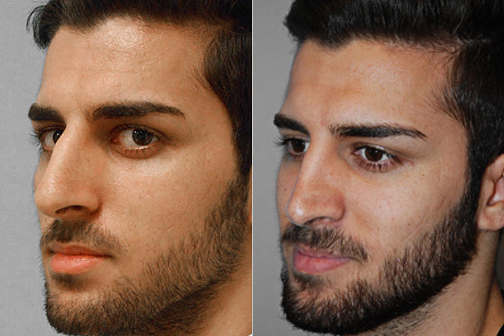 Bild på man från i halvprofil, före och efter en genomförd total näsplastik.