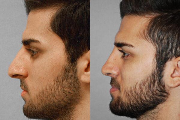 Bild på man i vänsterställd profil, från före och efter en genomförd total näsplastik.
