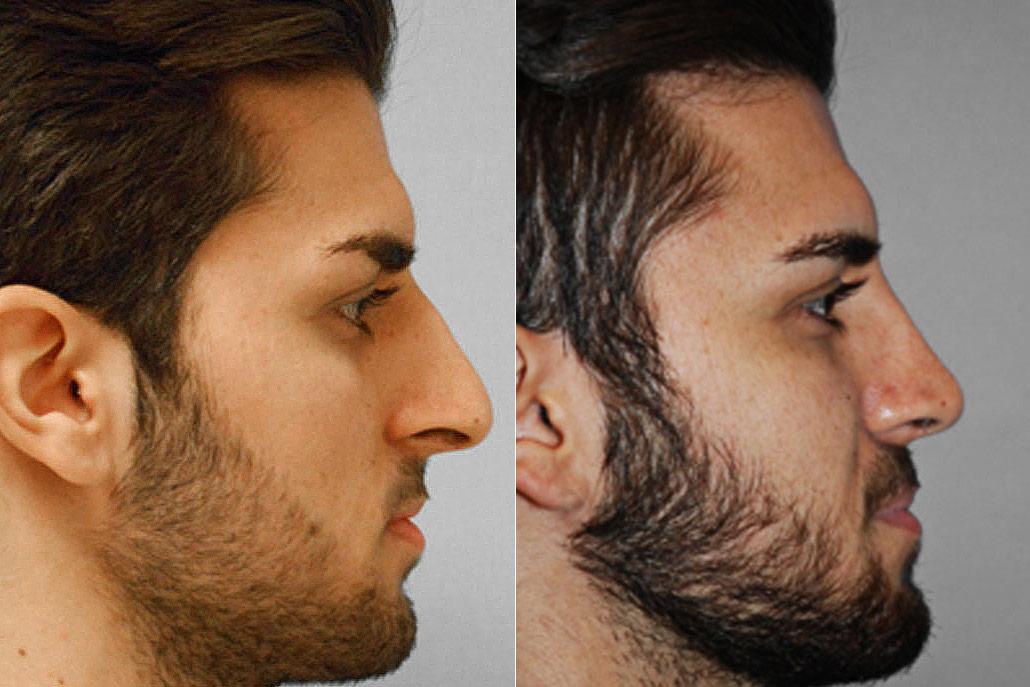 Bild på man i högerställd profil, från före och efter en genomförd total näsplastik.