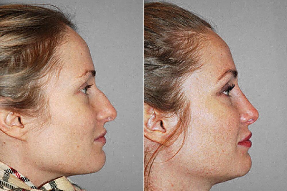 Bild på kvinna i profil, från före och efter genomförd total näsplastik.