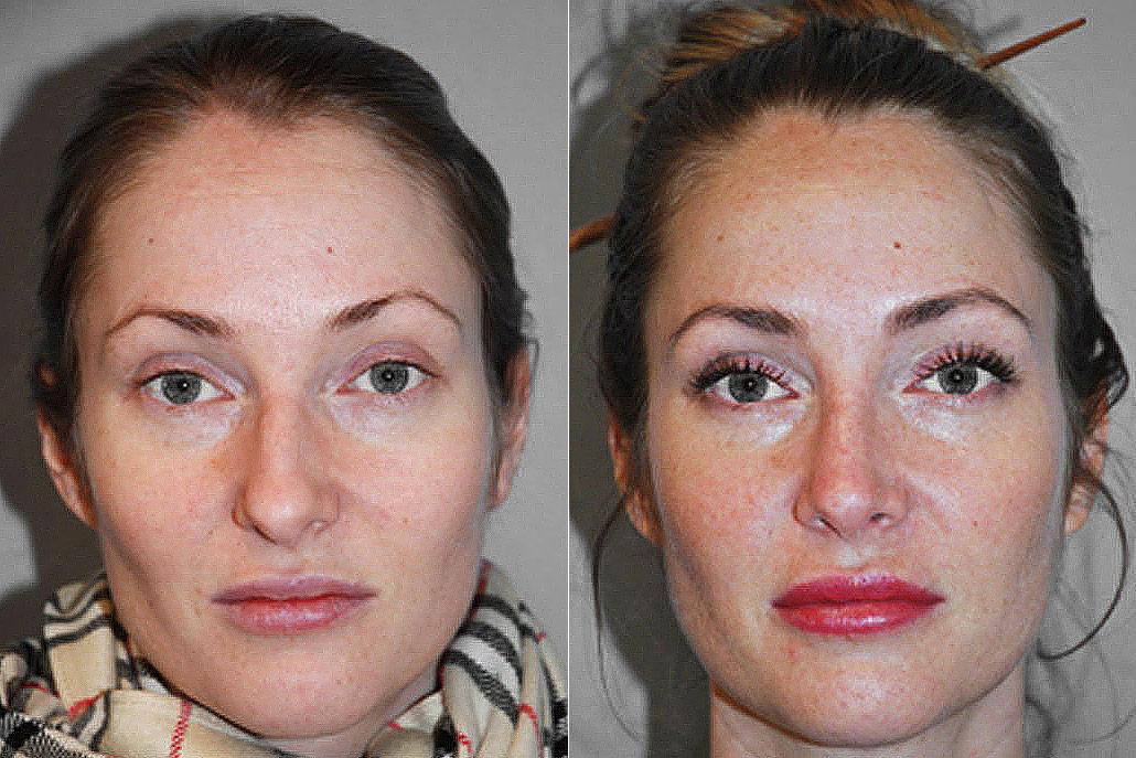 Bild på kvinna, från före och efter genomförd total näsplastik.