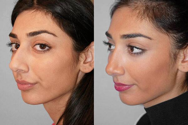 Total näsplastik - före- och efterbild i halvprofil, av kvinna som genomfört näsplastik.