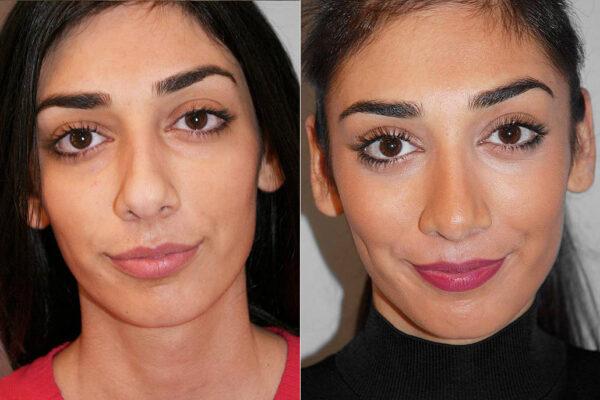 Total näsplastik - före- och efterbild, av kvinna som genomfört näsplastik.