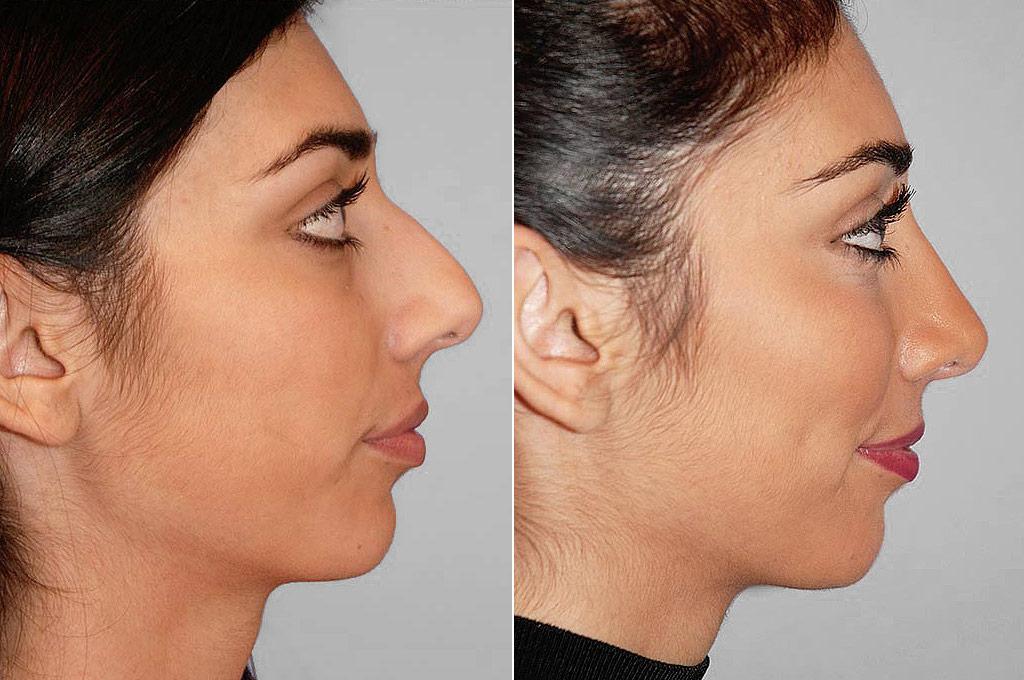Total näsplastik - före- och efterbild i profil, av kvinna som genomfört näsplastik.