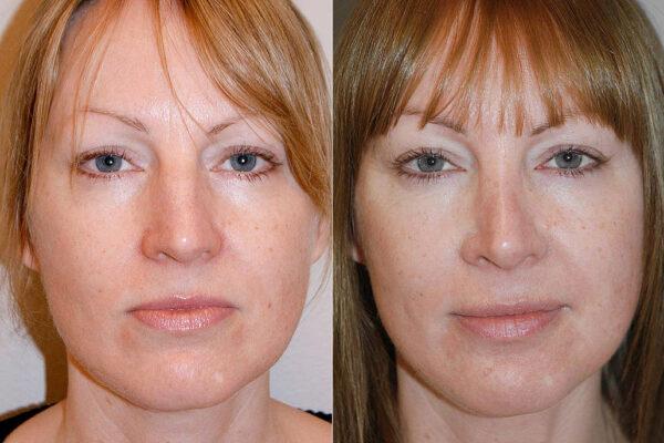 Före- och efterbild på kvinna som visar resultatet efter en genomförd total näsplastik.
