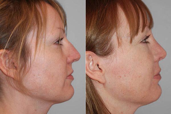 Före- och efterbild på kvinna i profil, visar resultatet efter en genomförd total näsplastik.