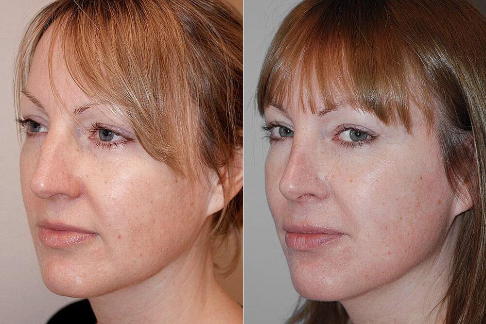 Före- och efterbild på kvinna i halvprofil, visar resultatet efter en genomförd total näsplastik.