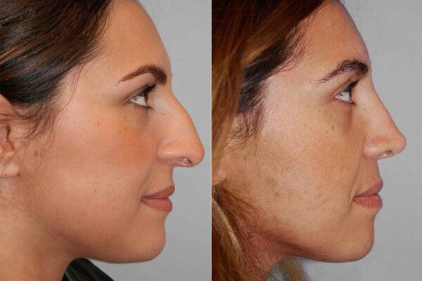 Profilbild på kvinna från före och efter en genomförd näsplastik i form av total näsplastik.