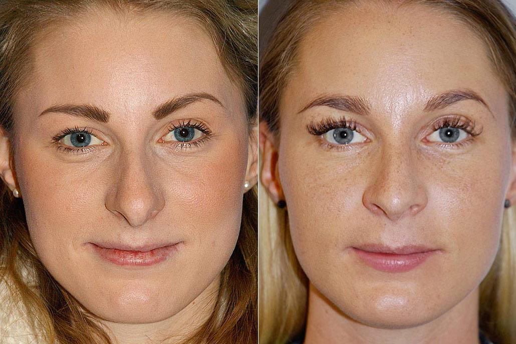 Total näsplastik - före- och efterbild av kvinna som genomfört näsplastik i form av total näsplastik.