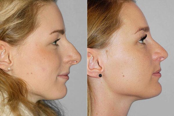 Total näsplastik - före- och efterbild av kvinna i profil, som genomfört näsplastik i form av total näsplastik.
