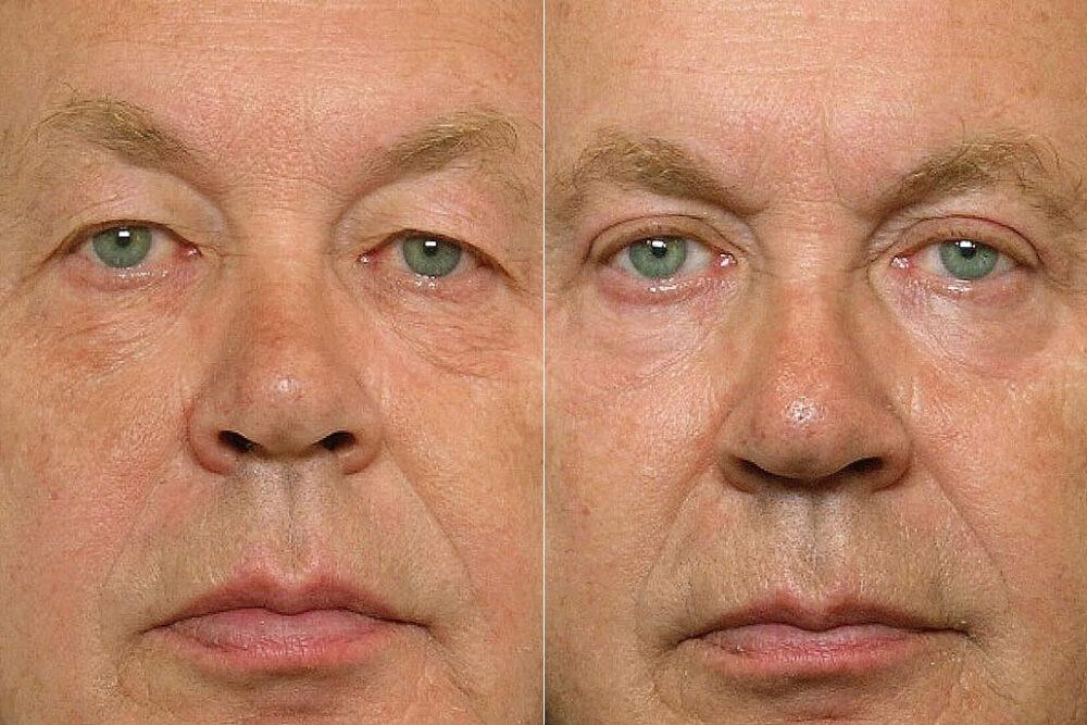 Detaljbild på man, före och efter genomfört övre ögonlocksplastik + laserbehandling med TotalFX laser under ögonen.