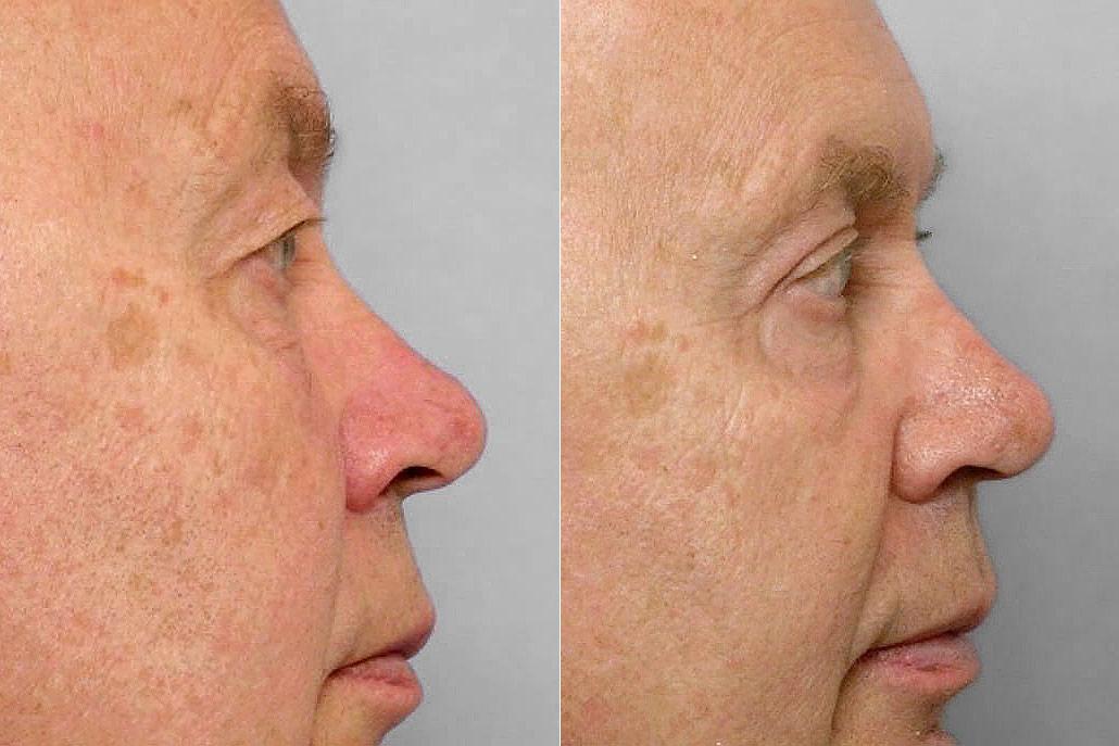 Detaljbild på man i höger profil, före + efter genomförd ögonlocksplastik + laserbehandling med TotalFX laser.