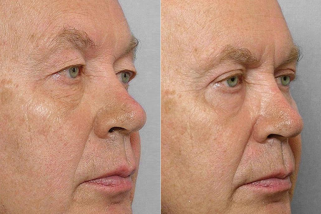 Detaljbild på man i höger halvprofil, före + efter genomförd ögonlocksplastik + laserbehandling med TotalFX laser.