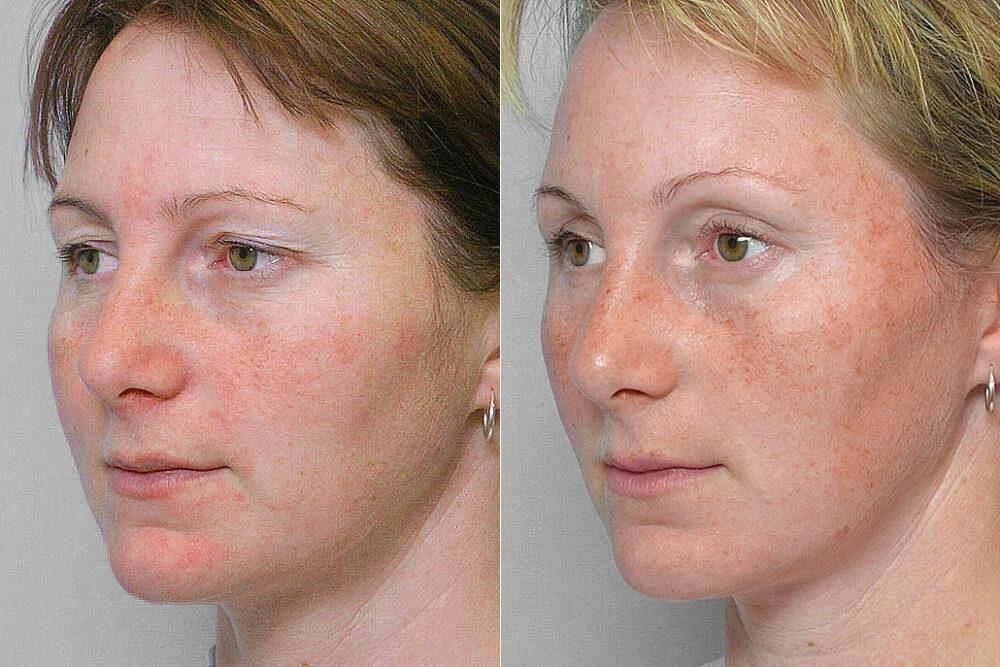 Bild på kvinna i vänster halvprofil, före & efter endoskopiskt pannlyft samt ögonlocksplastik av övre ögonlock.