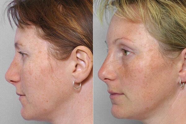 Bild på kvinna i vänster profil, före & efter endoskopiskt pannlyft samt ögonlocksplastik av övre ögonlock.