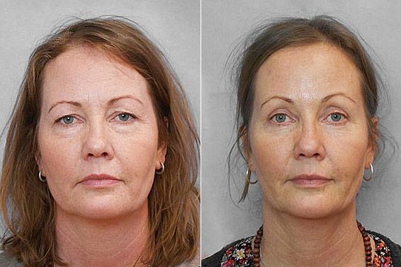 Före- och efterbild på kvinna som gjort pannlyft, övre ögonlocksplastik samt undre ögonlocksplastik.