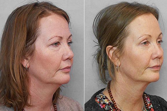 Före- och efterbild på kvinna i höger halvprofil, som gjort pannlyft, övre ögonlocksplastik samt undre ögonlocksplastik.