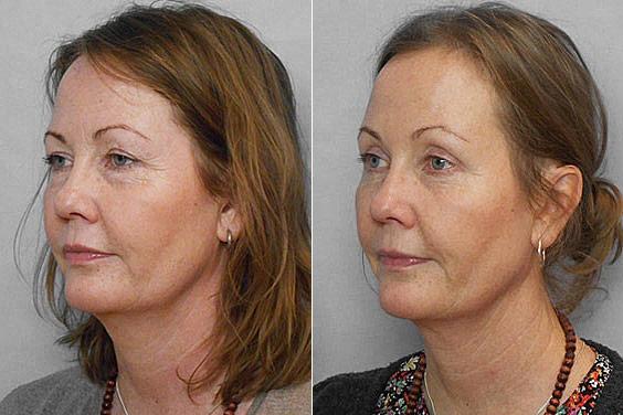 Före- och efterbild på kvinna i vänster halvprofil, som gjort pannlyft, övre ögonlocksplastik samt undre ögonlocksplastik.