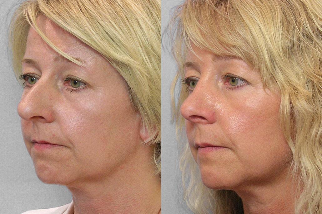 Bild på kvinna i halvprofil från före och efter en genomförd total näsplastik.