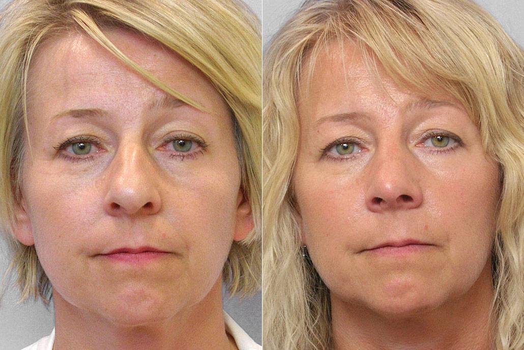 Bild på kvinna från före och efter en genomförd total näsplastik.