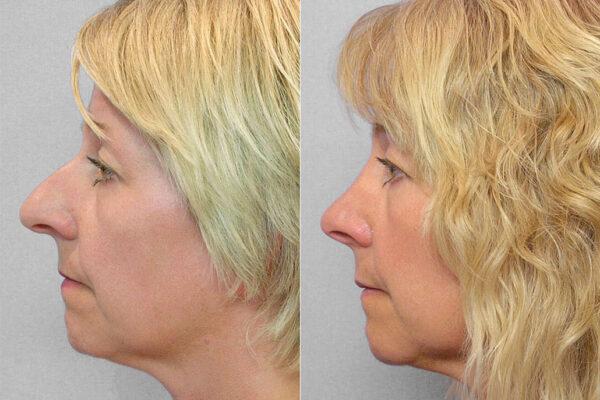 Bild på kvinna i profil från före och efter en genomförd total näsplastik.