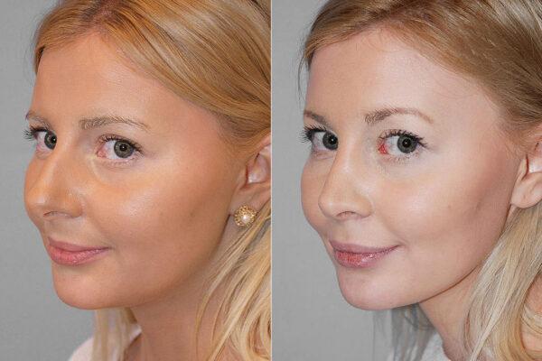 Total näsplastik - före- och efterbild av kvinna i halvprofil som genomfört näsplastik.