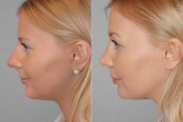 Total näsplastik - före- och efterbild av kvinna i profil som genomfört näsplastik.