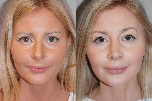 Total näsplastik - före- och efterbild av kvinna som genomfört näsplastik.