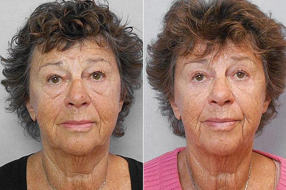 Före- och efterbild på kvinna som genomfört övre och undre ögonlocksplastik, genom snitt på insidan med laser.