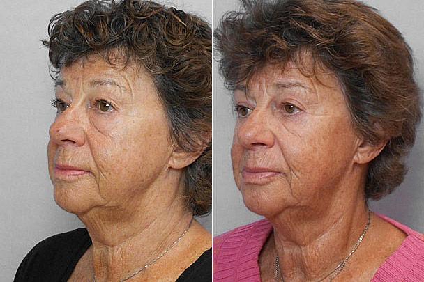 Före- + efterbild på kvinna i vänster halvprofil, som gjort övre + undre ögonlocksplastik, via lasersnitt på insidan.