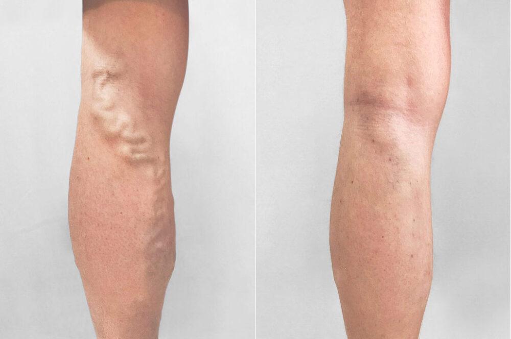 Bild från före och efter en medicinsk limbehandling i kombination med mikrosnitt, mot åderbråck.