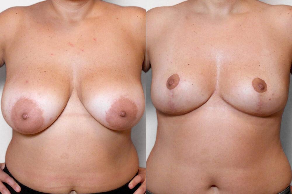Före- och efterbild på kvinna som genomfört en bröstförminskning.