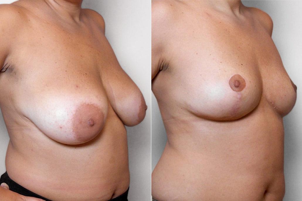 Före- och efterbild på kvinna i höger halvprofil, som genomfört en bröstförminskning.