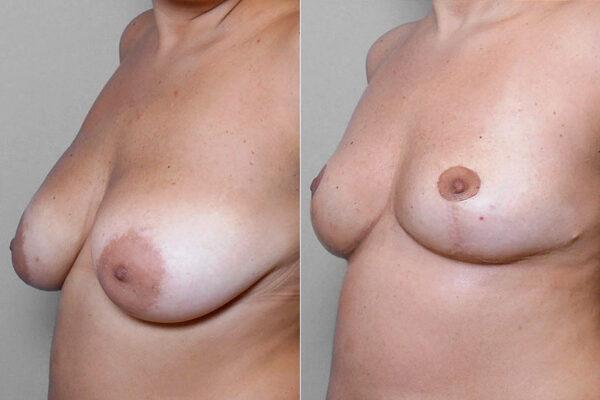Före- och efterbild på kvinna i vänster halvprofil, som genomfört en bröstförminskning.
