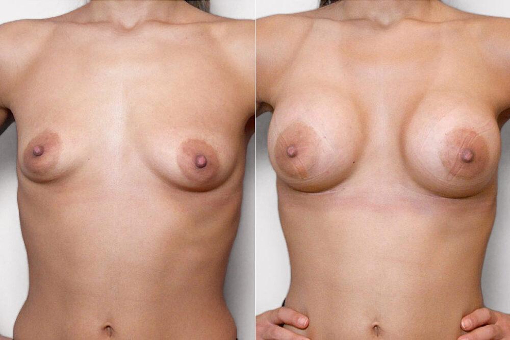 Före- och efterbild på kvinna som genomfört bröstförstoring med bröstimplantat Mentor Siltex Round High Profile 300 ml.