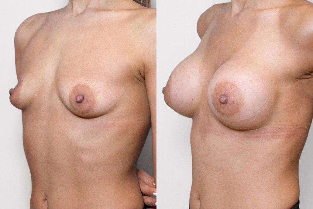 Bild på kvinna i vänsterprofil, före och efter bröstförstoring med bröstimplantat Mentor Siltex Round High Profile.