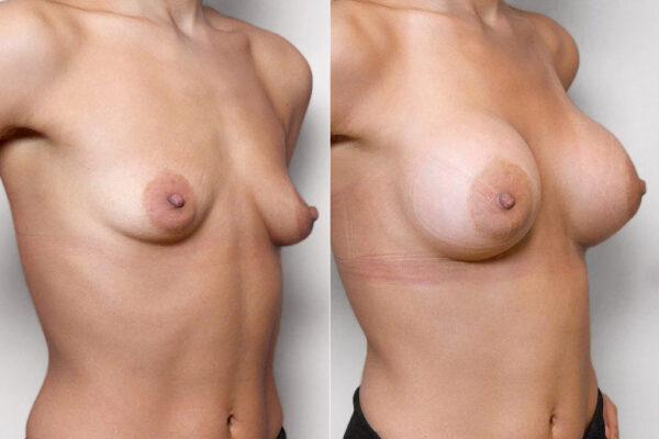 Bild på kvinna i högerprofil, före och efter bröstförstoring med bröstimplantat Mentor Siltex Round High Profile.